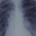 Cancerous lung x-ray